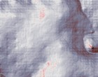 akupunktur aerzte hitch der date doktor
