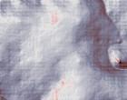 aerzte rheumatologie op waesche