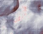 arzt haematologie internistische onkologie onkologie arzt
