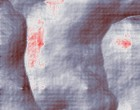 onkologie arzt transsexuell post op